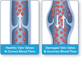 Venous Disease Explained